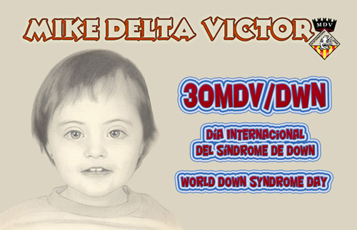 Qsl Sindrome de Down